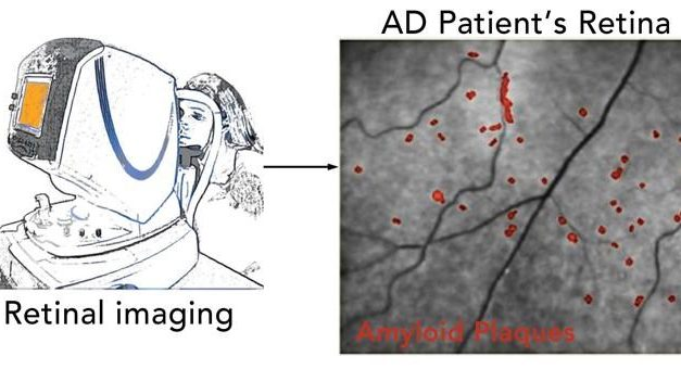New Eye Test Can Detect Alzheimer's Disease Many Years Prior to Symptoms Emerging